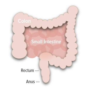 Overview of Colorectal Cancer - ANGIOPREDICT